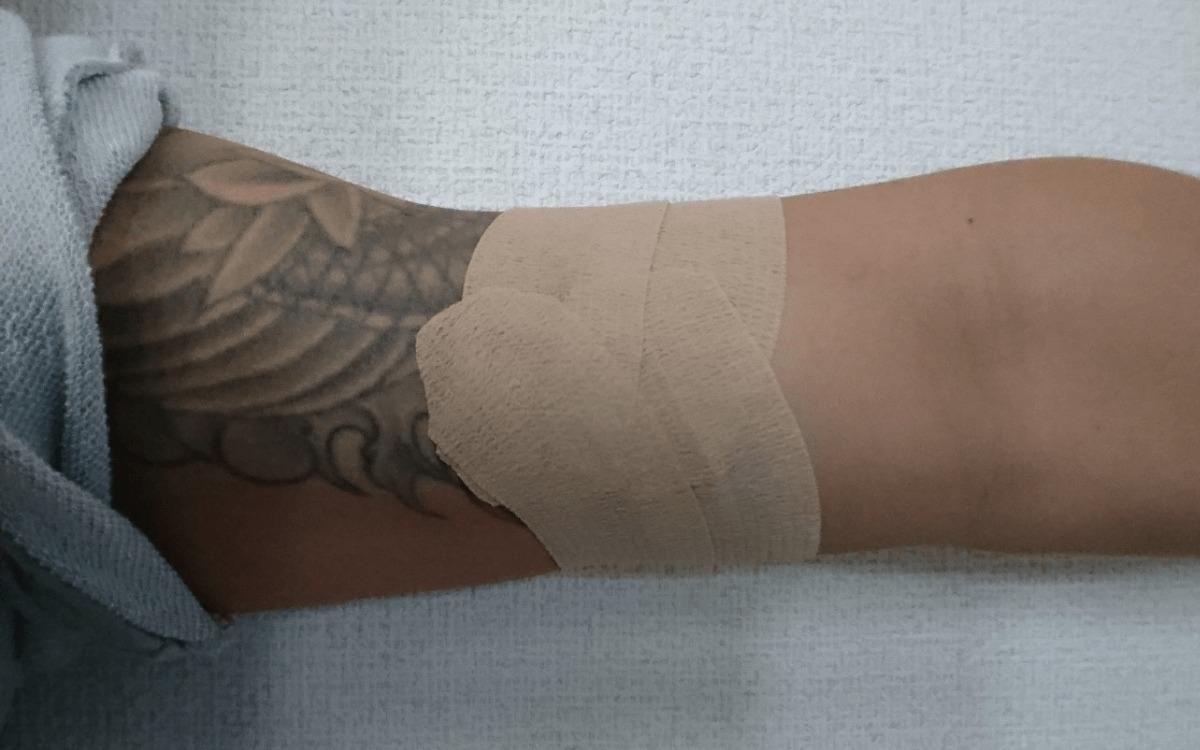 手順100均のテーピングでタトゥーを隠す刺青