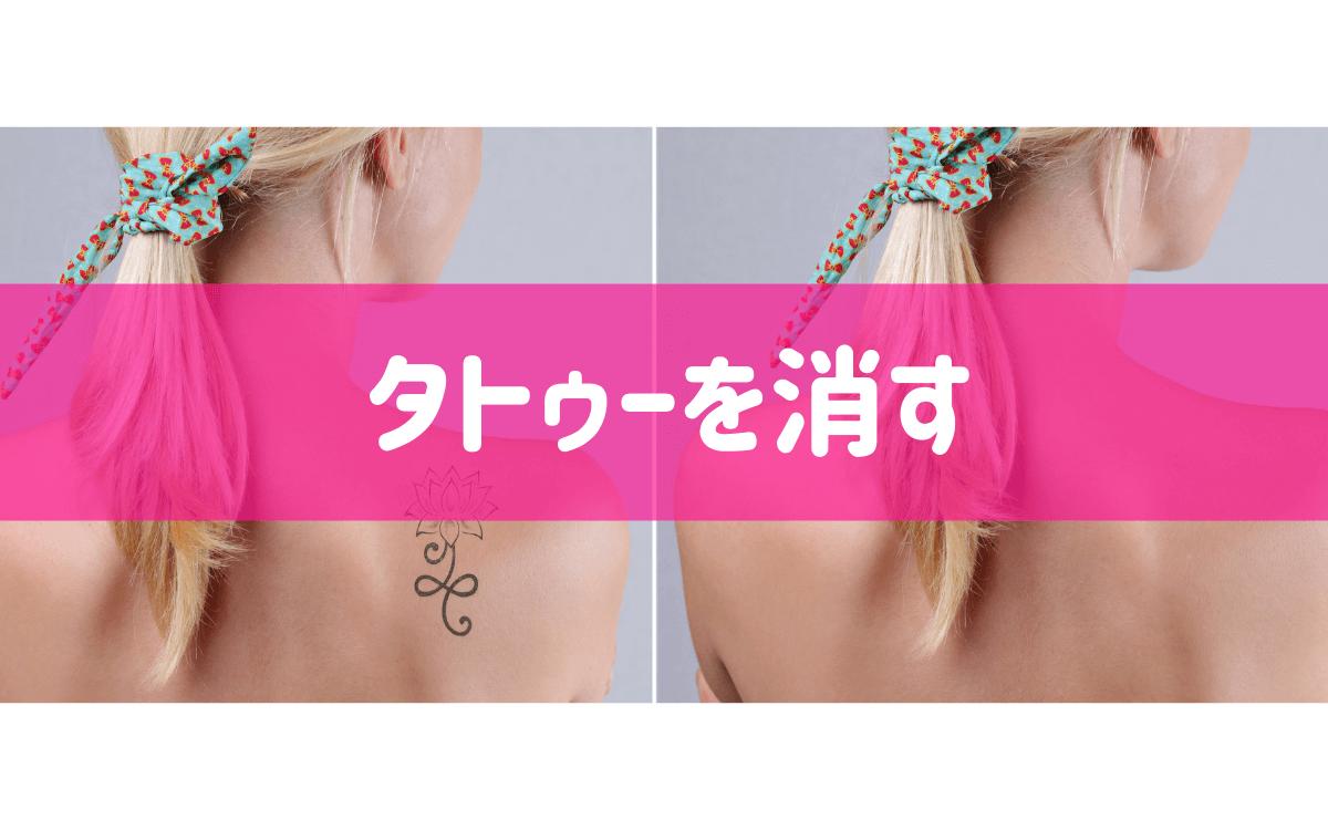 タトゥー(刺青)を消す